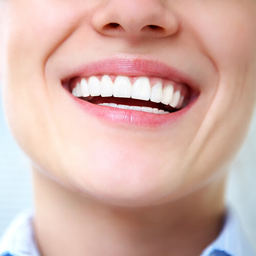 A close up image of a woman smiling with white teeth
